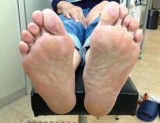 外反母趾の変形